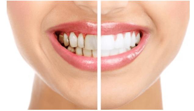 Brinsworth Dental Cosmetic Services Smile Comparison